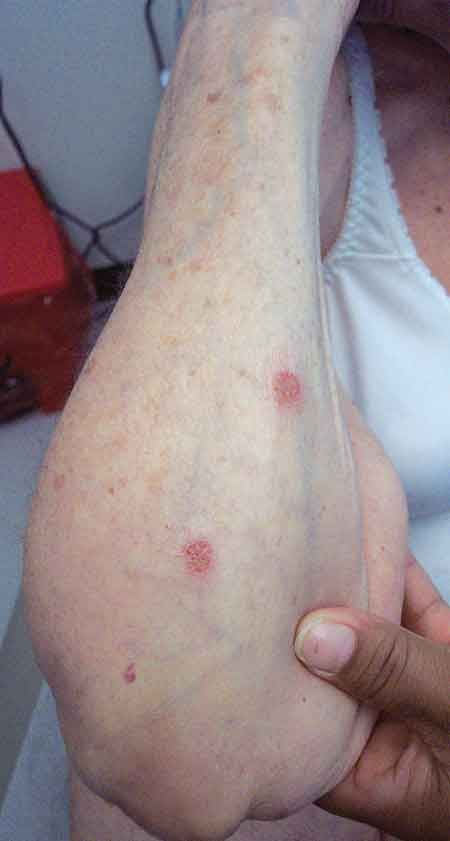 735 Best All About Eczema Images On Pinterest My Blog