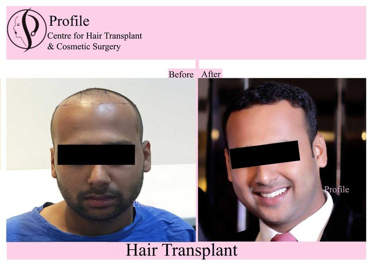 This picture shows the after look of one of our patients' after the treatment of hair transplant at our centre. For any query, call us at +91-98144-57148 and to know more or to book an appointment, visit our website.