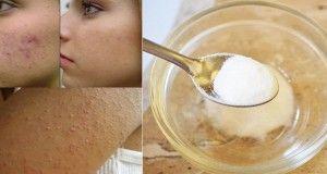 Retrouvez une peau de bébé avec ces 2 ingrédients