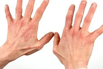 Tips to remove Skin Problems Healthy Gujarati, latest and healthy tips to remove skin diseases from the body.