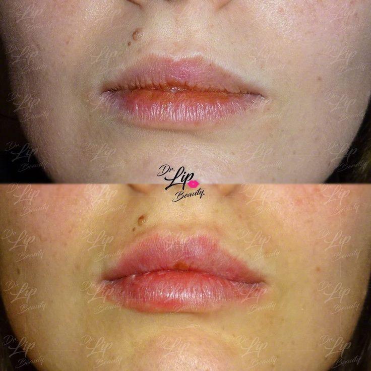 🎗TOUCH LIP© | Ridefinizione delle LΛBBRΛ 💋 | 2' Seduta: Aumento del labbro superiore nella sua porzione centrale. Stondatura del labbro inferiore. Correzione delle commissure.  #labbranaturali #bellezzasicura #drlipbeauty #lips #lip #lipfiller #lipfillers #fillerlips #filler