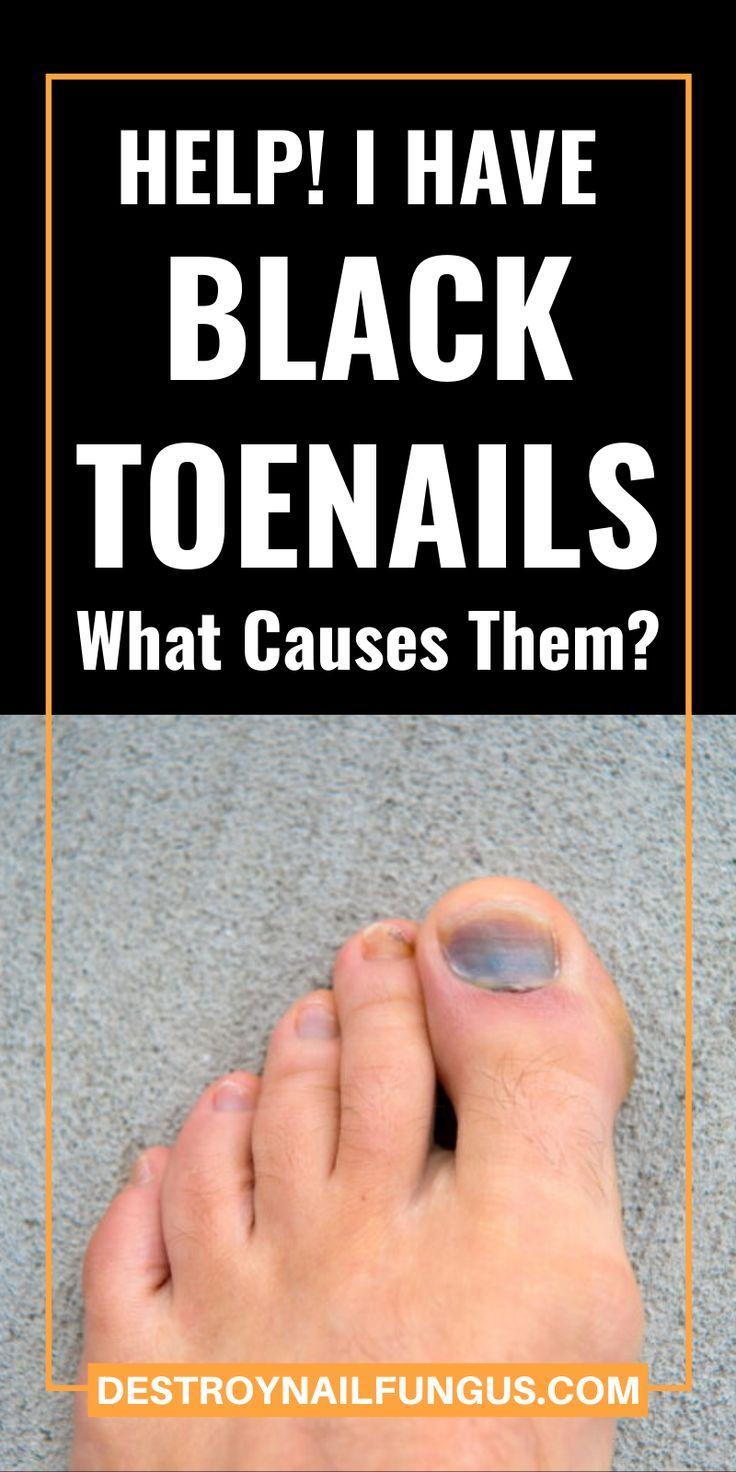 Why Is My Toenail Black In 2020 Toe Nails Nail Fungus Nail Fungus Treatment