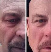 Flexing Your Face Performing Yoga For The Face To Obtain A No Surgery Facelift