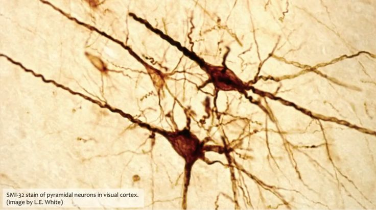 neuronas-1.png (1123×630)