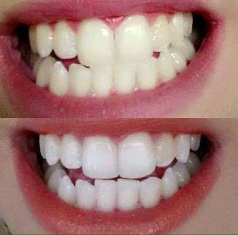 WHITENING TOOTHPASTE I'm excited to announce I'm now selling this amazing whitening toothpaste. Im so impressed with these results! It's completely peroxide and bleach free   https://www.facebook.com/groups/631907220347618/