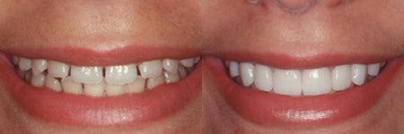 Porcelain veneers are a great way for you to enhance the appearance of your smile