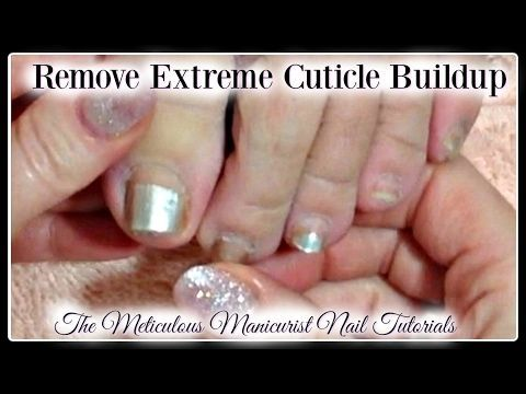 Pedicure Tutorial Cleaning Extreme Amount Of Dead Cuticle Skin On