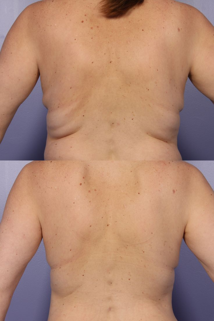 CoolSculpting procedure by Zeltiq. Freeze your fat without a need for anesthesia or numbing. Before and after pictures from Marina Plastic Surgery.