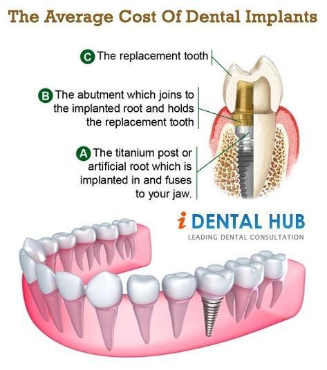 Best 25 Cost Of Dental Implants Ideas On Pinterest