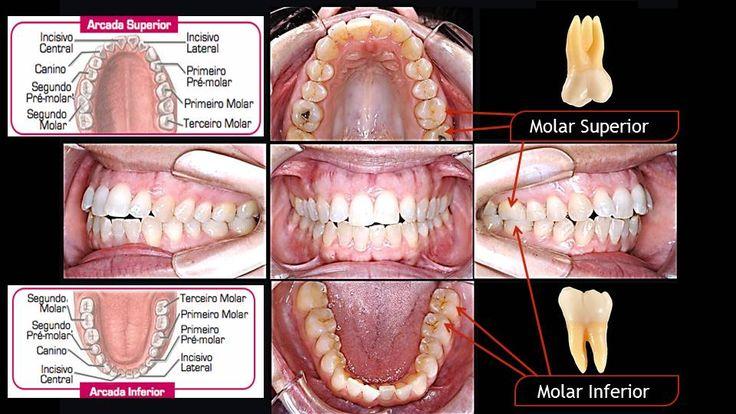 Quais dentes temos Dentes molares
