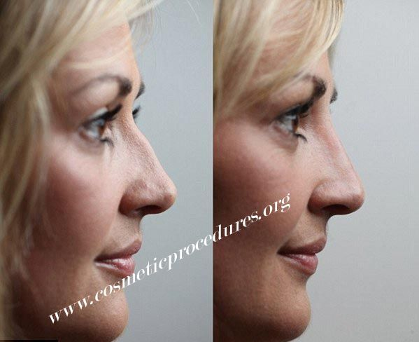 Nose job surgery abroad at affordable prices. If you are unhappy with your nose and want a nose job. Fill in the form and our medical consultant will get back to you with the best option.
