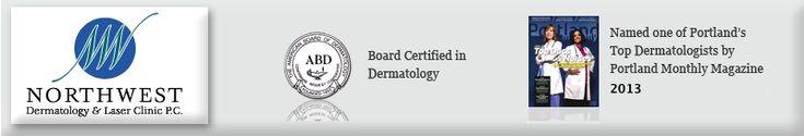 VBeam Laser for redness and spider veins - Northwest Dermatology & Laser Clinic P.C.