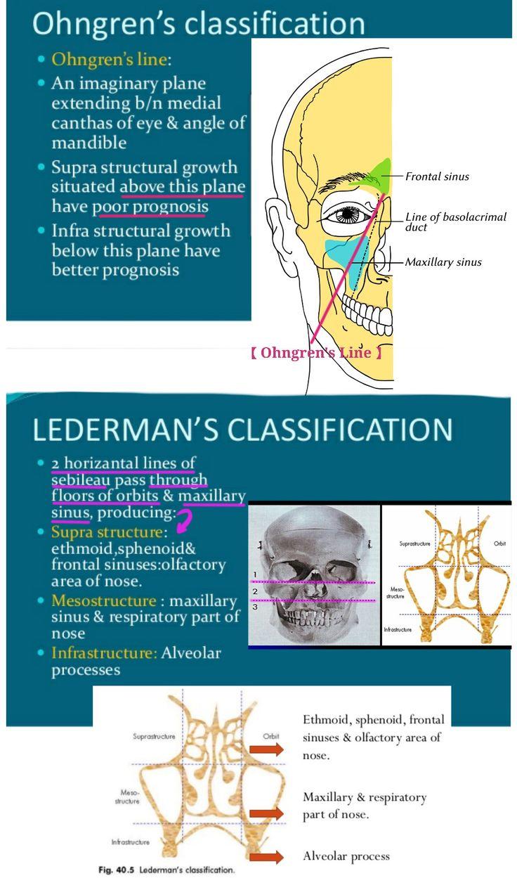 Maxillary sinus carcinoma Classification .... #line #Ohngren #Lederman