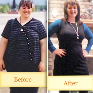 How much does achieve medical weight loss cost image 2