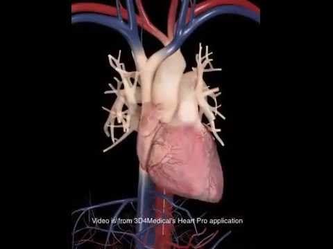 Interesante video de como se realiza un cateterismo cardíaco y angioplastia Que lo disfruten - YouTube