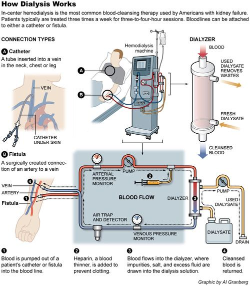 Many people do not realize or understand what is involved when someone undergoes dialysis.  This is a good illustration.  Something I never want to endure again.