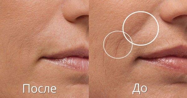 Jak pozbyć się własnych fałdów nosowo-wargowych.  Sposoby na wagę złota!