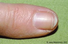 Brittle Splitting Nails - American Osteopathic College of Dermatology (AOCD)