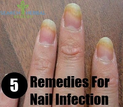Nail infections are fungal or bacterial by nature and are caused due to their invasion of the nail bed through cracks in nail or cuticle. Symptoms include breaking apart of nails (because they become brittle), their discolouration, pain in them and bad odour. Further consequences which are rare but possible include rashes and itches in other parts caused due to allergic reactions.The best home remedies for nail infection, simple but highly effective are these. Best Home Remedies For Nail…