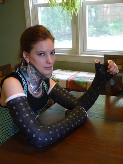 Double Long Arm Thumb Spica DLAC and neck brace