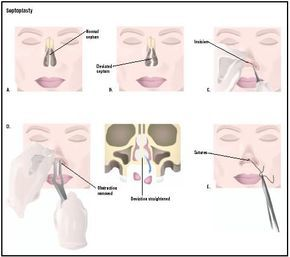 Septoplasty is used to correct a deviated septum (B). First an incision is made to expose the nasal septum (C). Pieces of septum that are ob...