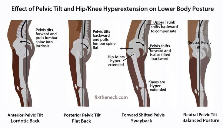 Effects of pelvic tilt & Hip/ knee hypertension