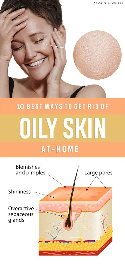 Top 10 Home Remedies To Get Rid Of Oily Skin Permanently!