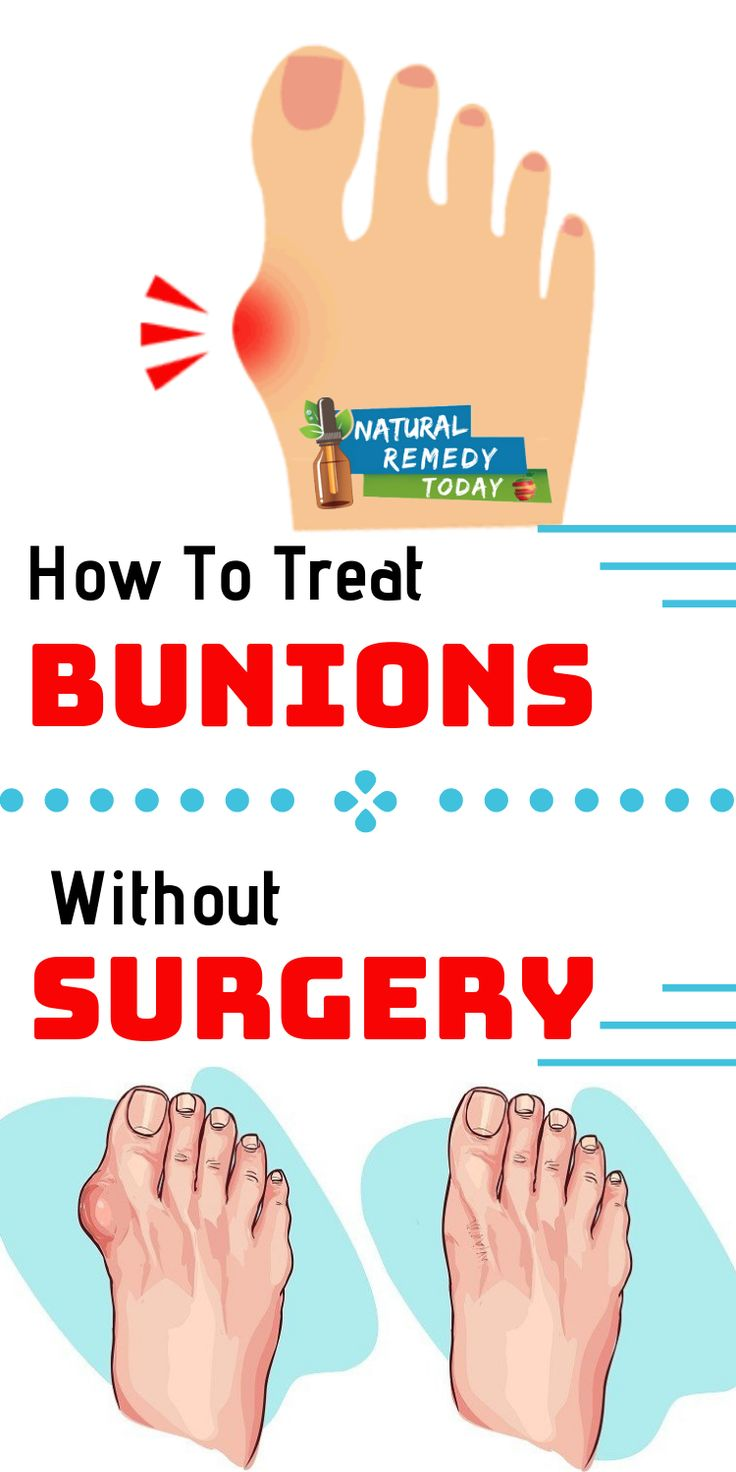Get rid of bunions bone deformity in just 10 days at