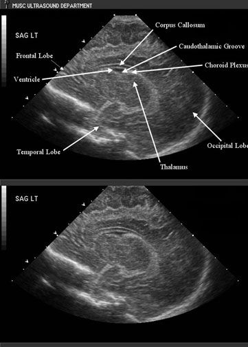142 Best Radiation Therapists Images On Pinterest Medical Imaging