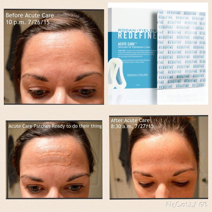 This is Mandi Howard and her results of JUST ONE time use of Rodan+Fields Acute Care Strips!  Need I say more.   Place a Preferred Customer order the month of August recieve a sample of these amazing Acute Care Strips and be entered for a FREE box of Acute Care Strips!   Message me for details plus you can use the Solutions tool to find the right products for your skin!  https://nmittasch.myrandf.com/Pages/OurProducts/GetAdvice/SolutionsTool