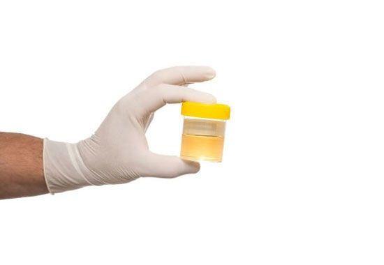Constipation et Infection urinaire: la constipation peut être l'une des causes des infections urinaires... #régime #nutrition #diététique #grossesse #mincir #maigrir #constipation #ballonnements