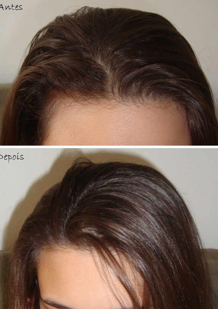 <p>Se o seu cabelo é oleoso, esta receita caseira vai dar os resultados que há muito espera, sem ser dispendiosa, essencial nos tempos de crise que se atravessa. Então proceda da seguinte forma com esta mistura de fruta: – 1 maçã – 1/2 limão – 1/2 copo de água mineral …</p>