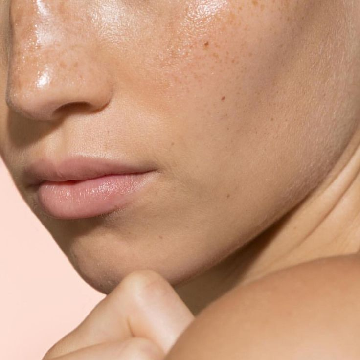 The symptoms of hyper-pigmentation can be inevitable. Brighten up your complexion with the right ingredients at the right time 〰 ANTIPIGMENT +CLARITY @faceofsilk #glowingskin #skinhealth #hydratreat3  • 242 likes