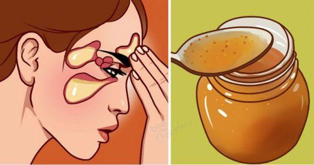 Sinüzit ve Migren… Sirkeli suyla en fazla 15 günde bitiyor… | Bitkilog