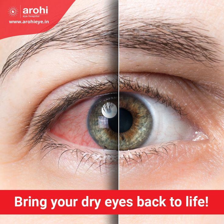 Dry Eye Treatment in Andheri West Mumbai in 2020 Dry eyes