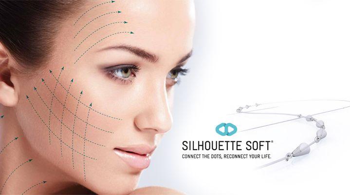 Το Silhouette soft πραγματοποιείται απλά και γρήγορα με απορροφήσιμα νήματα κάτω από το δέρμα. Ανάμεσά τους υπάρχουν μικροί κώνοι από πολυγαλακτικό οξύ, ουσία που διεγείρει τους ινοβλάστες στη παραγωγή νέου κολλαγόνου.