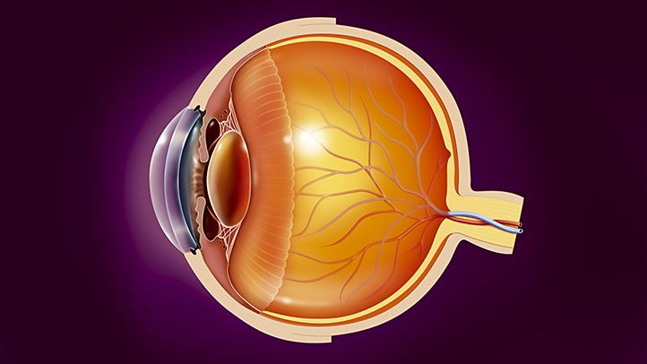 Commonly associated with MS, this inflammation of the optic nerve can cause pain and temporary vision loss.
