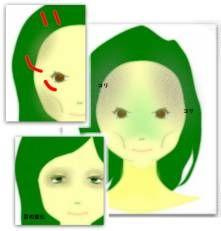 以前、歯列矯正していた方は、顔の老化が通常より早く出ますね。また、デスクワーク、パソコンを使われている方は顔や頭皮の緊張が増します。 元々、矯正中に口や頬などの表情筋が弱ります。そのため、おでこやこめかみなど目のまわりにある表情筋を緊張させることによって筋力が弱い口頬をカバーしま...