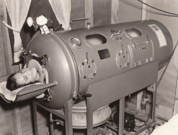 iron-lung3.jpg (620×471)
