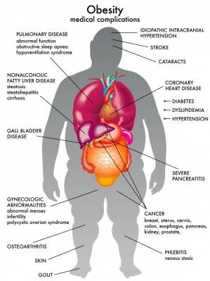 """*""""Obesity Associated with Fatty Liver Disease"""" - DrCarney.com  - Linda Carney MD Blog"""