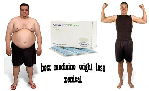 Spectacularly Amazing treatment for Obesity-Xenical
