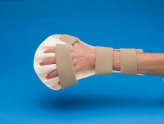 OCCUPATIONAL THERAPY ; SPLINTING: Variety of Splint