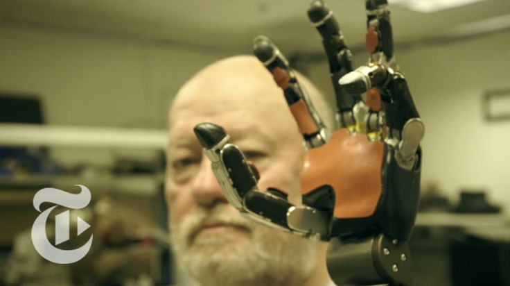 A Double Amputee Tests an Incredible Set of Robotic Prosthetic Arms