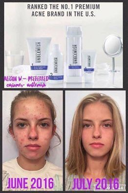 Rodan   Fields Unblemish Regimen is for acne and post acne marks.  This is the #1 acne skincare in the US.  60 day money back guarantee.  Message me on pinterest with any questions @ R Fskincare101.