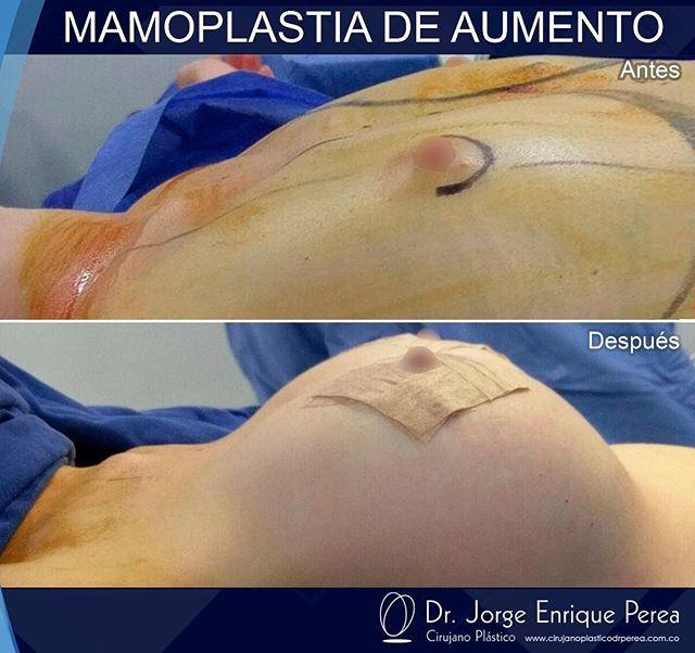 Resultados de #mamoplastiadeaumento . Paciente feliz con resultado natural. #AntesYDespues  #drperea #resultadosnaturales #procedimientoseguros  Contáctanos a los teléfonos 0316912830 -  0316912827 -  3152214775 . www.cirujanoplasticodrperea.com.co ➡ Calle 91 No 19C - 62 Centro Médico El Virrey. Bogotá, Colombia . . . #bogota #Colombia #cirugiaplastica  #plasticsurgery #bellezanatural #naturalbeauty #lipo #liposuction #liposuccion #abdominoplasty #abdominoplastia #mamoplastiadeaumento…