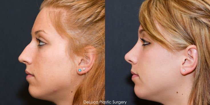 Black celebrity rhinoplasty before and after patients