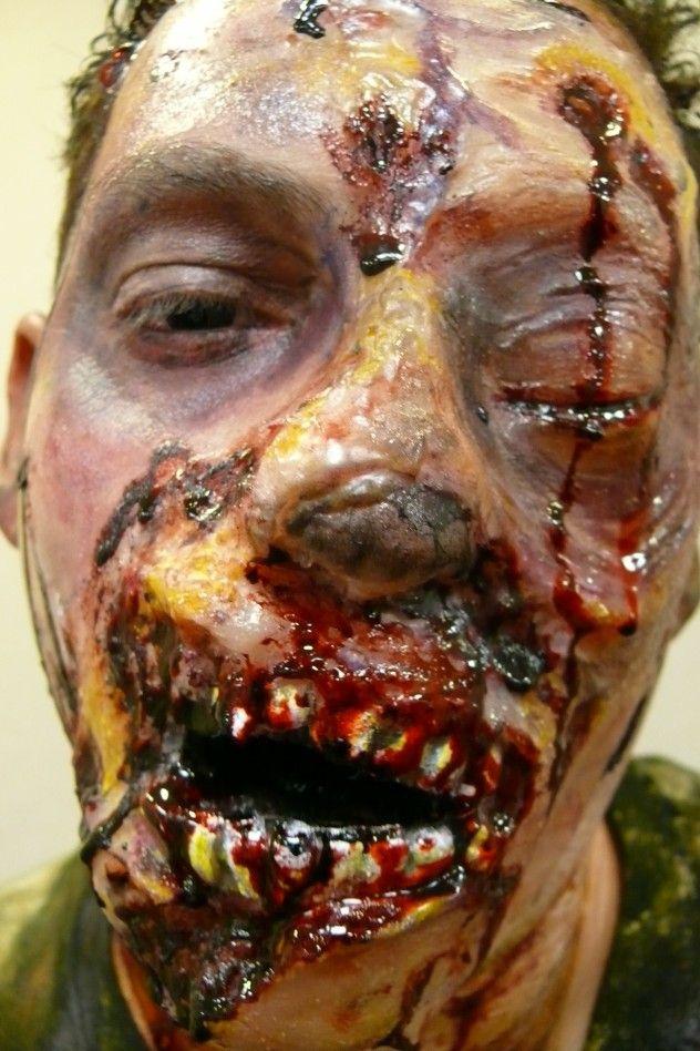 Autopsy showing damage drug addict