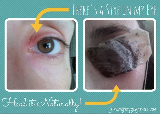 There's a Stye in My Eye ~ Heal it Naturally!