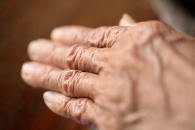 Opciones caseras y naturales para curar la artritis.