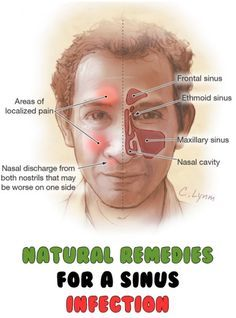 Natural Remedies For A Sinus Infection ==